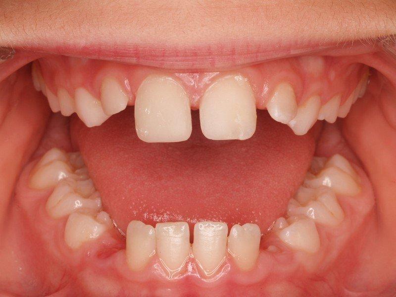 Dentistas en Murcia