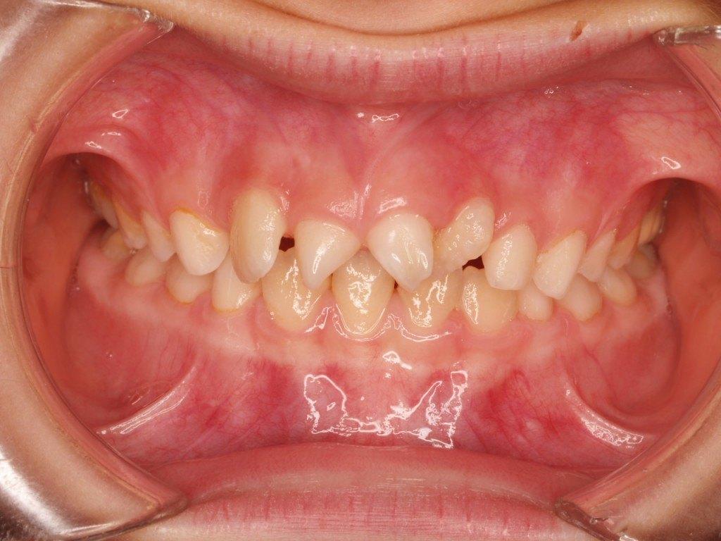 Clinica Dental en Murcia